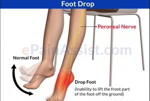 drop foot