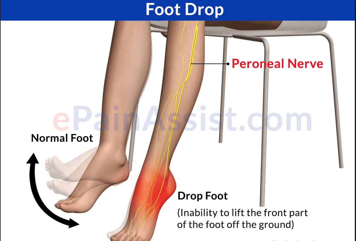 Ankle & Foot Pain - Physical Therapy in Asheville NC