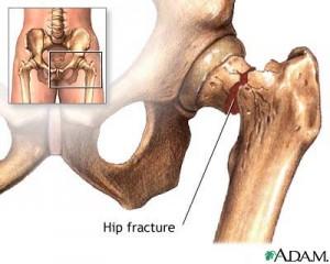 hip-fractures