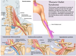 thoracic-outlet-syndrome