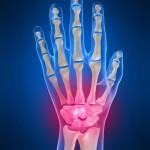 wrist_pain