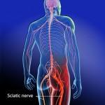 5 Easy Ways to Decrease Sciatica Pain